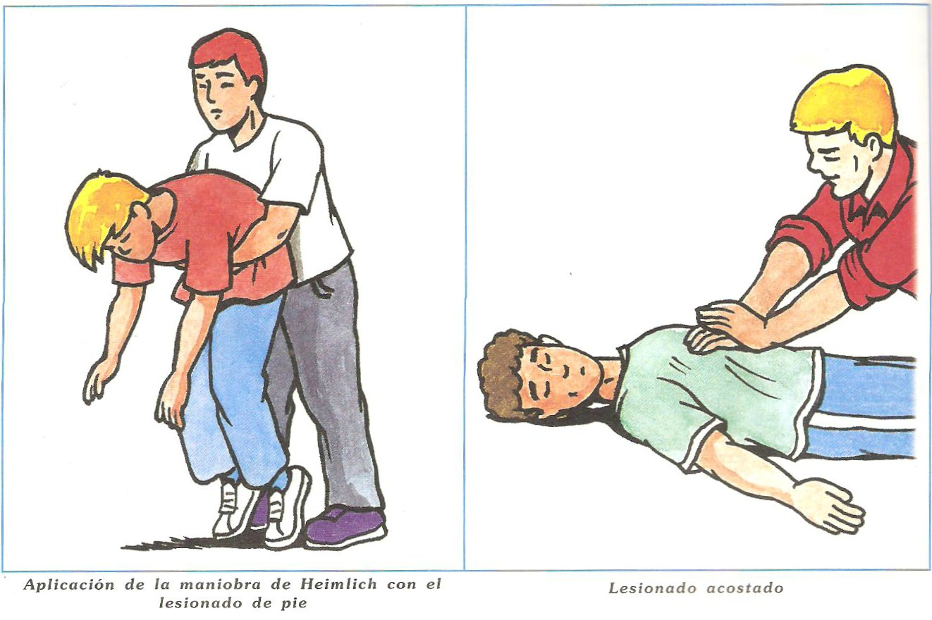 Primeros auxilios en caso de asfixia Primeros auxilios