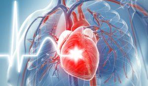 Ejemplos de Enfermedades Cardiovasculares