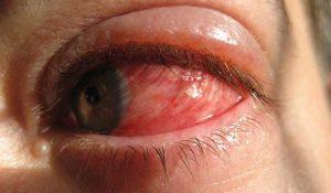 Ejemplos de Enfermedades en los Ojos